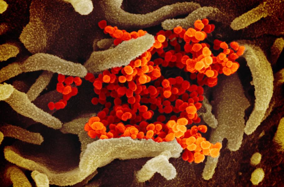 Coronavirus: Respuestas de estado y dimensiones culturales – Por el Dr. Alex Joffe (BESA)